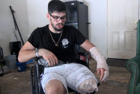 DRUNK DRIVER CHANGING PEOPLES LIVES IN  MONTGOMERY COUNTY-MAN LOSES LEG TO DRUNK DRIVER